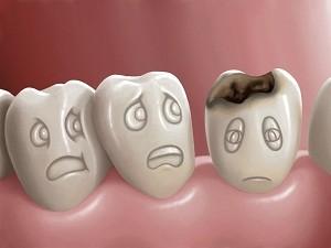 pret carii dentare