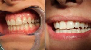 albire dentara plus obturatie coronara, albire dinti