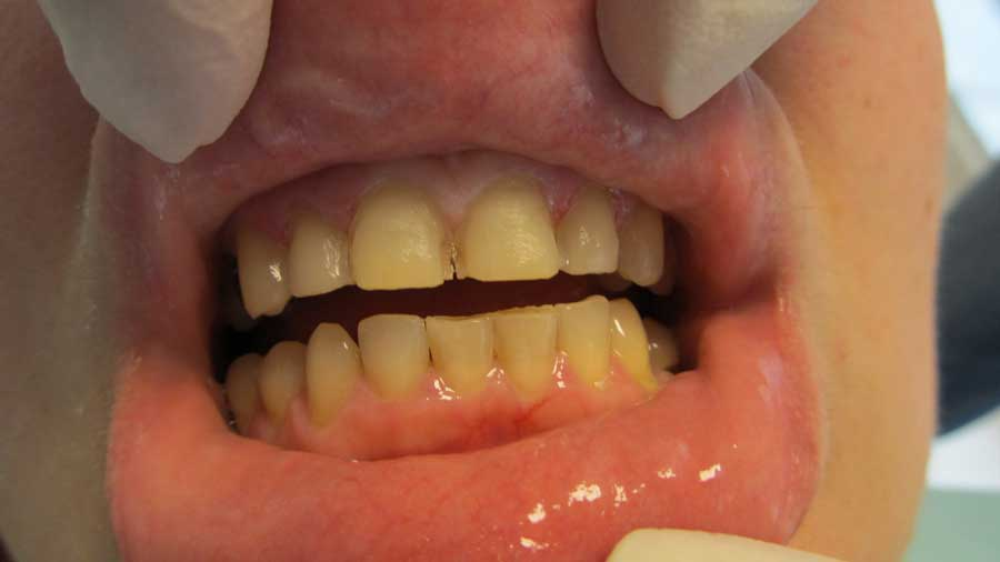 fatete-dentare2 sector 2