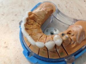 fatete-dentare3