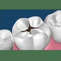 caria-dentara-stomatologie