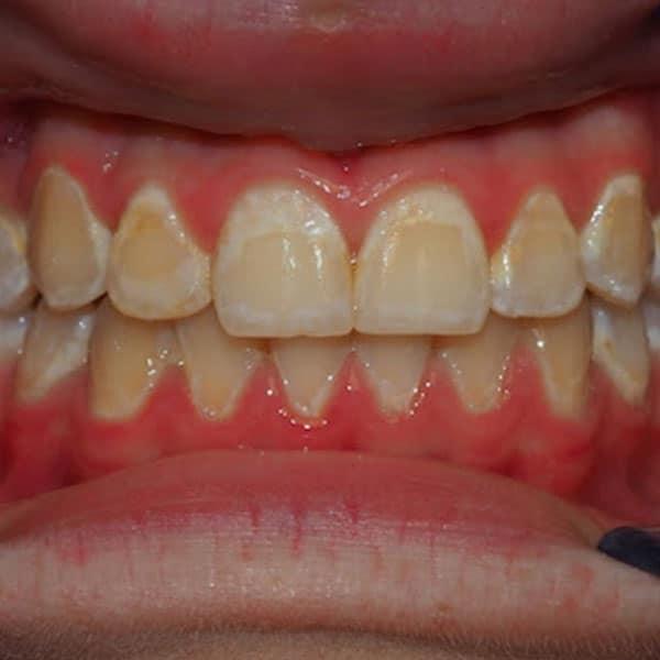 afecțiuni dentare pediatrice