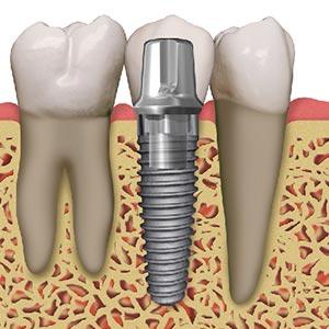Implant-dentar-oferta-DCD sector 2