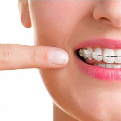 aparat-dentar-pret