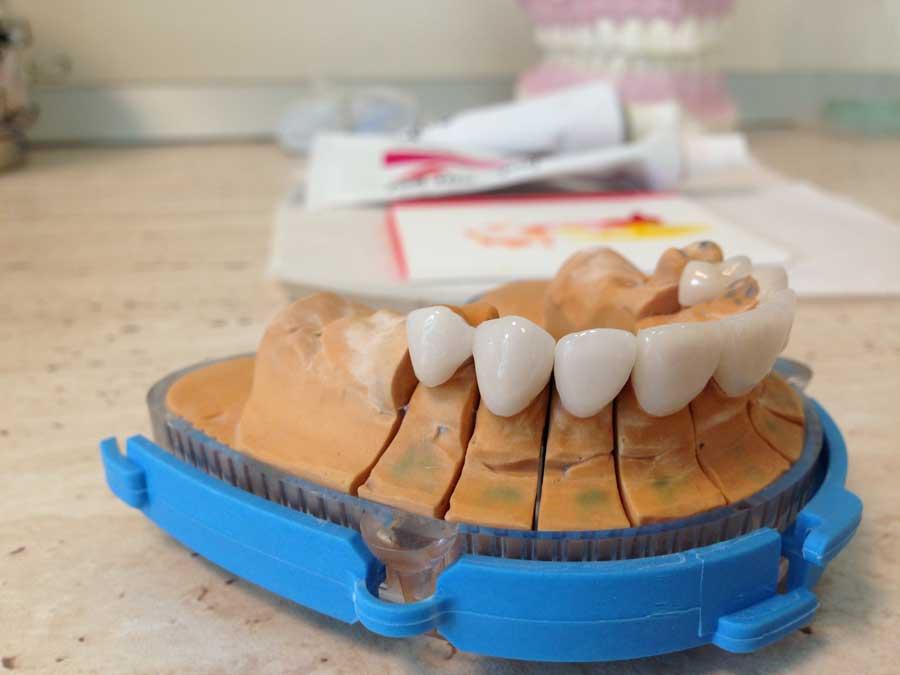fatete dentare -2