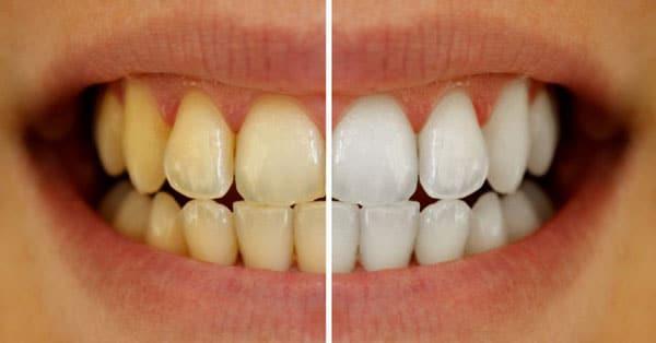 Fatetele-dentare bucuresti