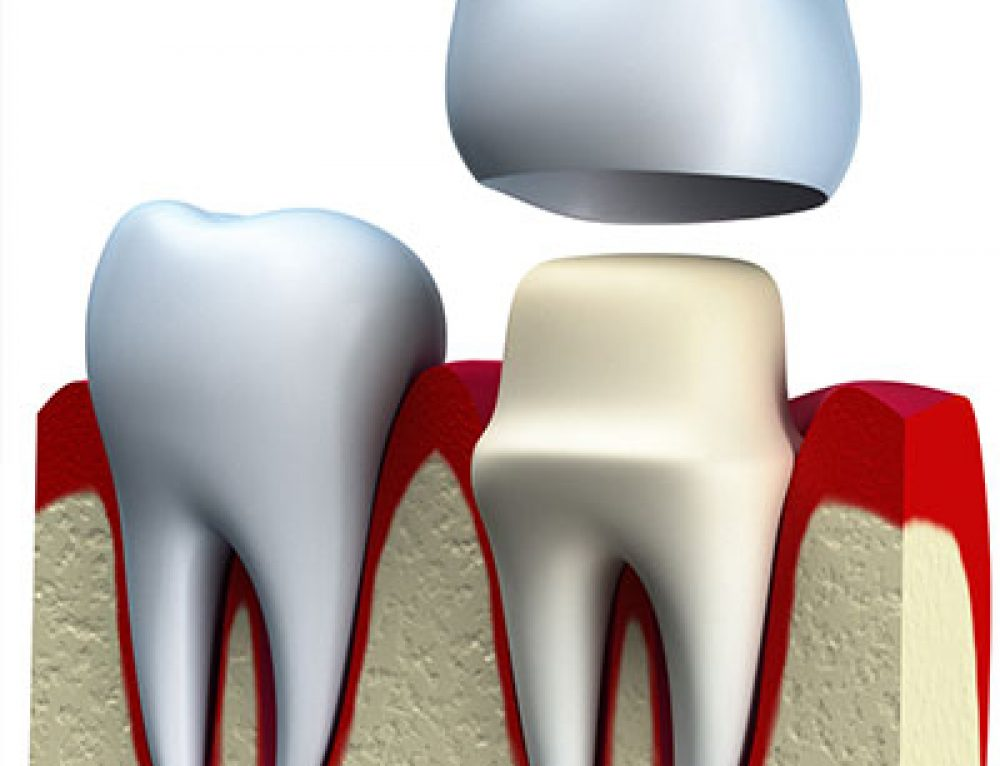Sfaturi coronite dentare