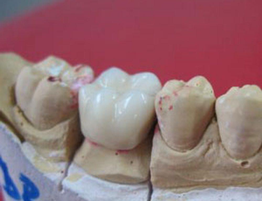 5 lucruri de stiut despre dintii de portelan