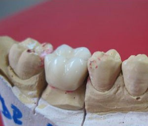 Dintii de portelan Coroana dentara ceramica coronite dentare