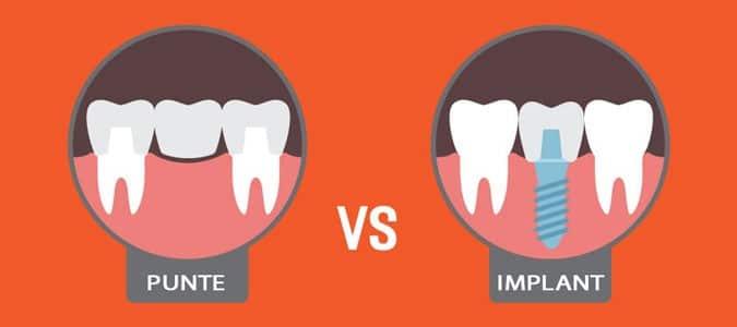 Punte dentara vs implant dentar bucuresti