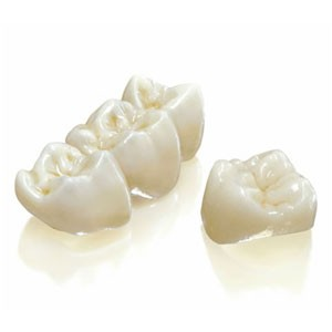 avantaje dinti de portelan