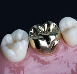 Coroana dentara metalica pret bucuresti