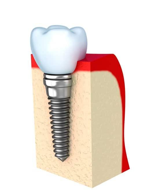 implant-dentar-pret-v3-promotie-300-b