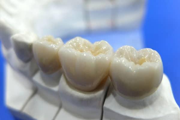 Coroana-dentara-zirconiu Delta Clinic Dent
