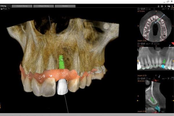 Implant dentar Delta Clinic Dent