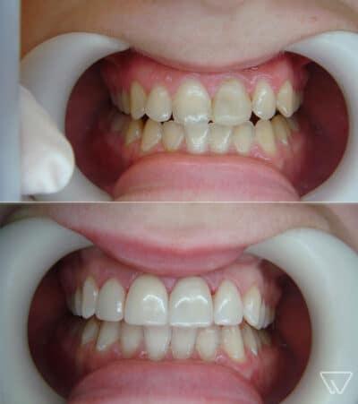 fatete dentare avantaje si dezavantaje