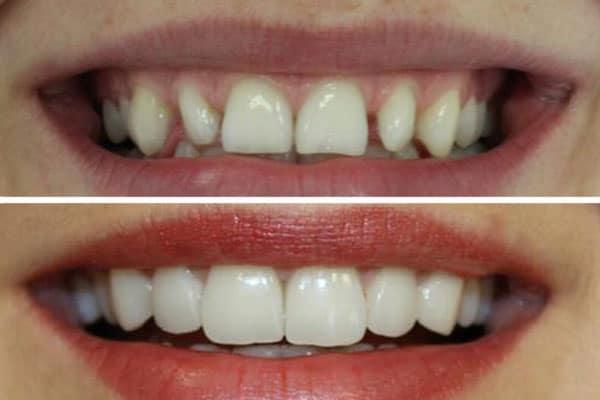 fatete dentare Delta Clinic Dent