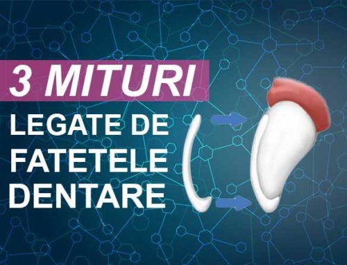 3 mituri despre fatetele dentare