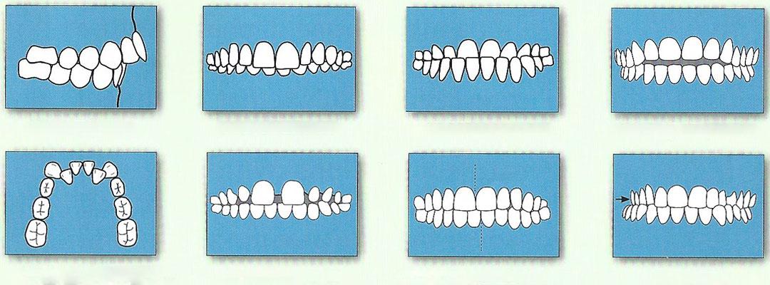 motive sa-ti pui aparat dentar