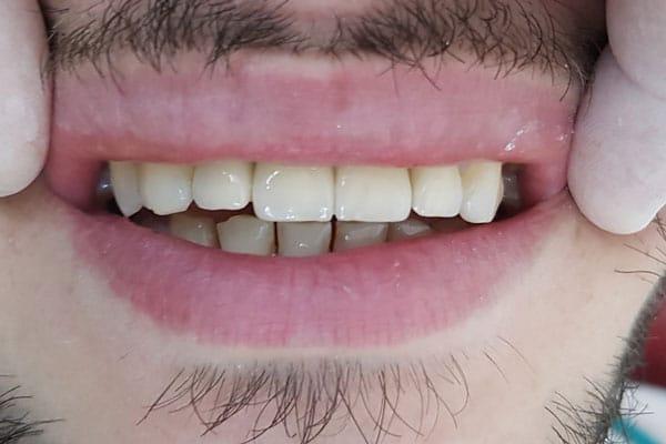 Coroane-dentare-zirconiu-inainte-caz-35-bucuresti sector 1