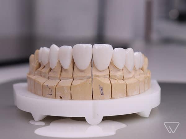 dinti-zirconiu coroana dentara pret