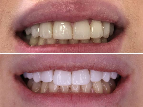 Inainte-si-dupa-Fatete-dentare-bucuresti