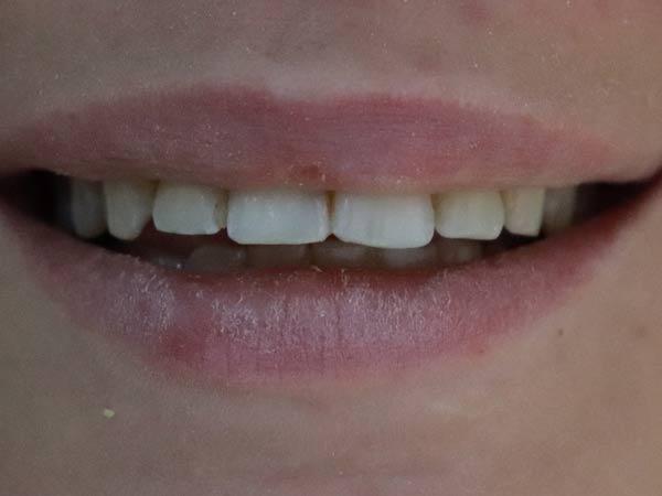 fatete dentare pret