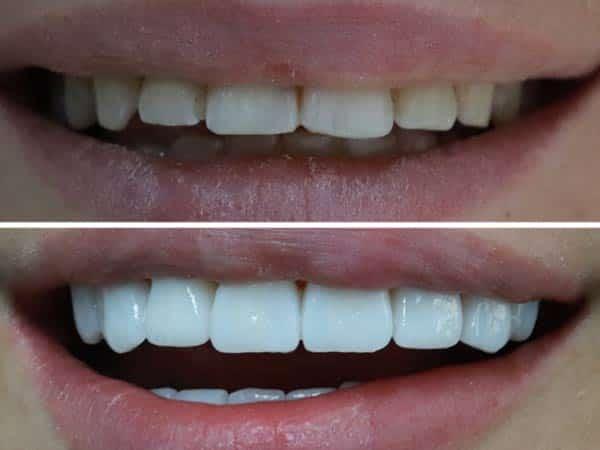 Fatete dentare pret bucuresti