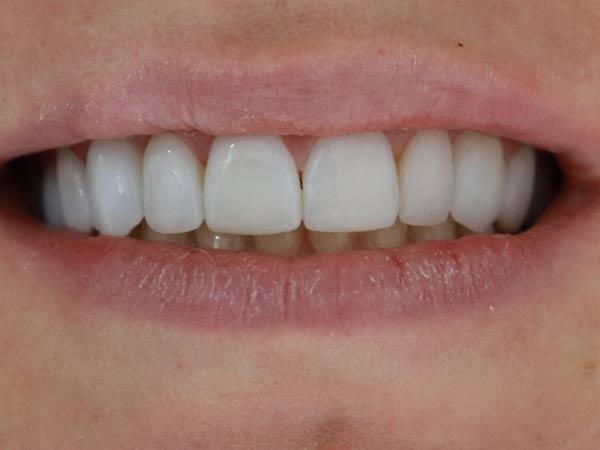 fatete dentare no prep