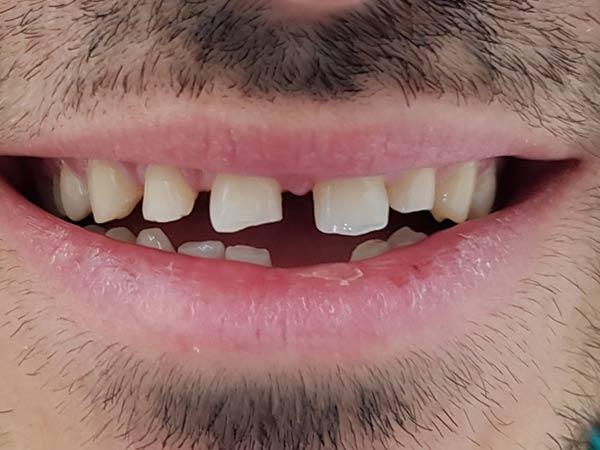 fatete-dentare-49-no-prep-inainte