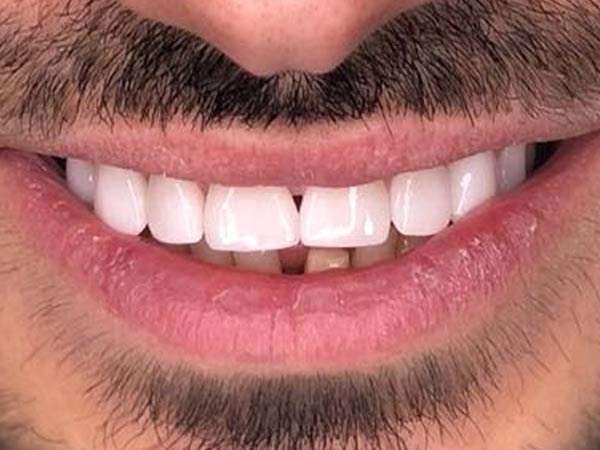 fatete-dentare-49-no-prep