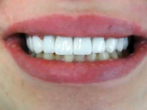 dinti portelan si fatete dentare
