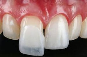 Fatete-dentare-EMax-pret