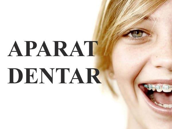cat-costa-un-aparat-dentar-fix