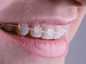aparat-dentar-safir-pret
