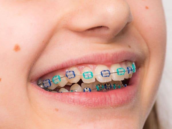 aparat-dentar-safir