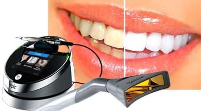 albirea dintilor cu laser