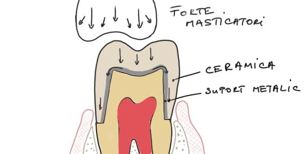 Coroana dentara metalo ceramica