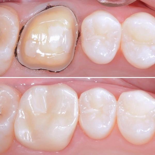Coroana dentara ceramica
