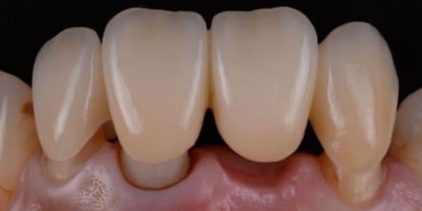 Coroana dentara ceramica Pret