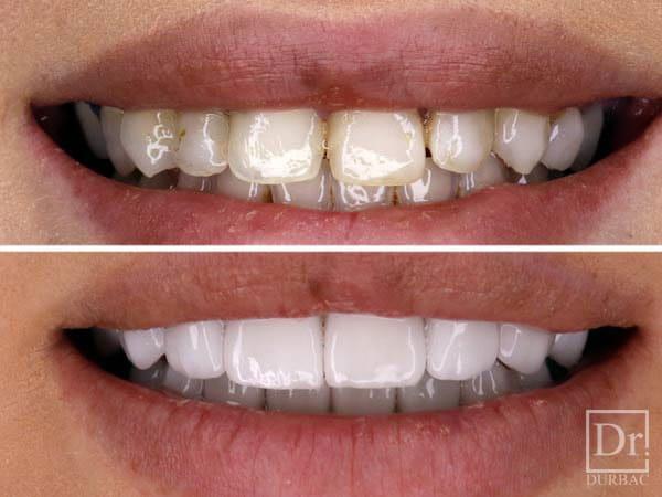 preturi fatete dentare