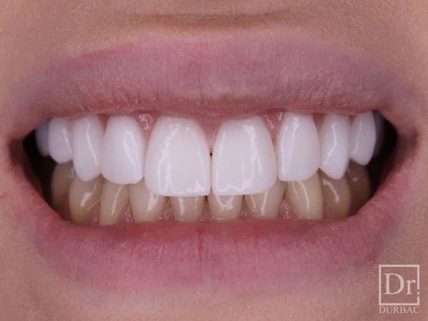 Fatete-dentare-Dr-Durbac-Bucuresti-dupa