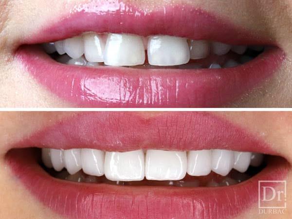 fateta dentare
