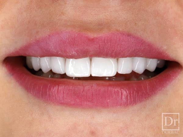 Fatete-dentare-Dr-Durbac-Bucuresti-dupa-caz-83-5