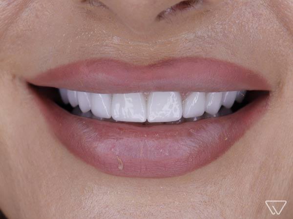 Fatete-dentare-Emax-Dupa-caz-102