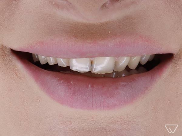 Fatete-dentare-Emax-Inainte-caz-102