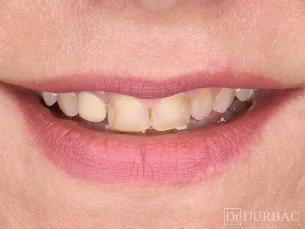 Fatete-dentare-Emax-Inainte-caz-28