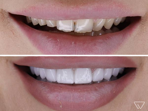 Fatete-dentare-Emax-Inainte-si-dupa-caz-102