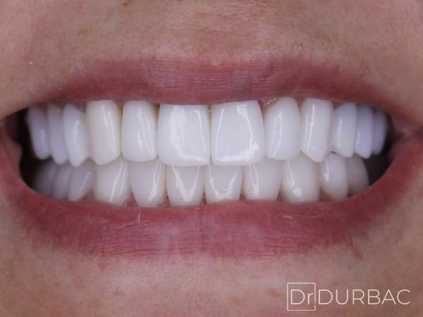 fatete dentare dupa