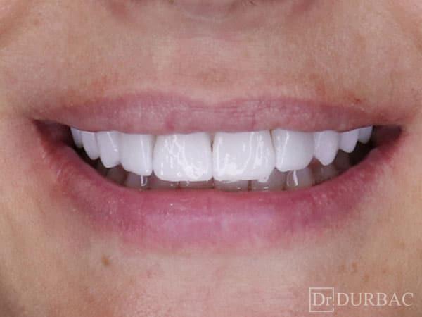 Pacient-132-fatete-dentare-Dupa